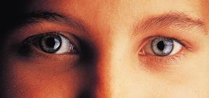 Anspruch auf Laser-OP als Heilbehandlung bei Kurzsichtigkeit