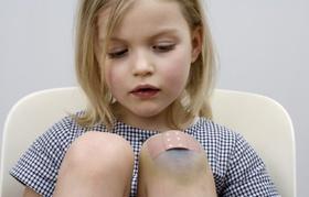 Kleines Mädchen schaut auf blaues Knie mit Pflaster
